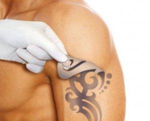 Лазерное удаление татуировок и татуажа