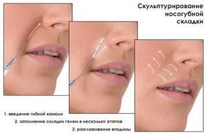 АКЦИЯ!!! Увеличение губ 4000-4500 грн. Контурная пластика лица