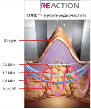 Радиоволновой лифтинг лица