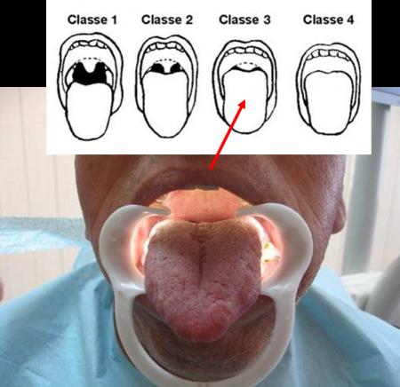 Лазерное лечение храпа процедура NightLase
