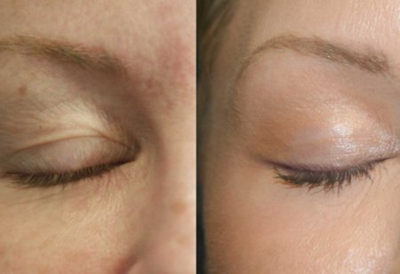 Лазерная блефаропластика Fotona Smooth Eye