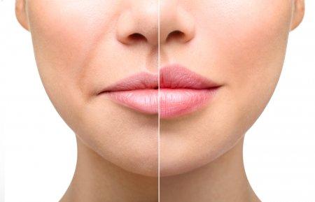 Лазерное омоложение губ Fotona SmoothLips