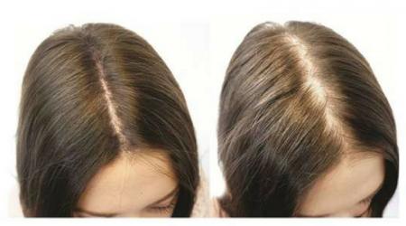 Лазерное лечение алопеции-выпадения волос