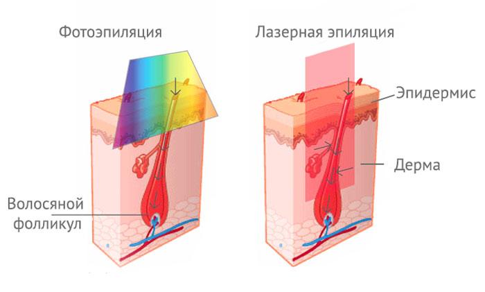 Чем отличается фотоэпиляция от лазорной эпиляции лазерное лечение акне в новосибирске